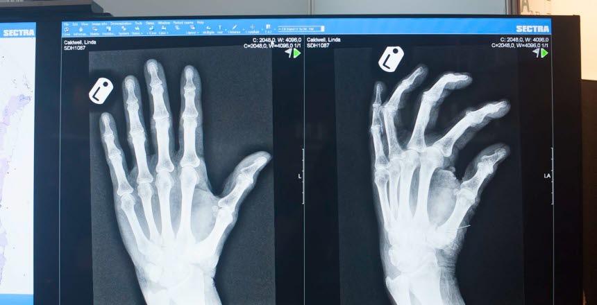 Röntgenskärm med hand